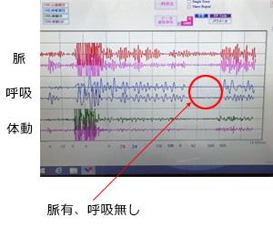 呼吸を止めた場合の波形の変化